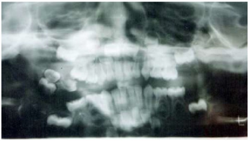 Orthopantomograph showing location of mass in the right buccal mucosa.