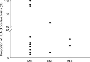 Distribution of HLA-G-positive cases from all patients. HLA-G cell surface expression was analysed by flow cytometry. The dot in vertical represents proportion of HLA-G-positive leukaemic blasts from AML, CML and MDS, respectively.