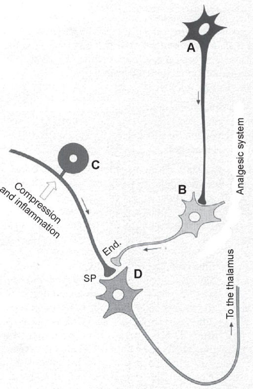 Scheme of the mechanisms for the control of algesic signals. By releasing endorphins (End.), the enkephalinergic interneuron may inhibit the presynaptic connection of a neurocyte (C) of a spinal ganglion, which, under compression of a herniated disc, stimulates the release of substance P (SP). Endorphins can inhibit the transmission of the algesic signal to neuron D (D), hence to the ascending spinal-thalamic fibers. The monoaminergic or serotonergic neuron A (A), as a component of antinociceptive descending fibers, can reinforce the analgesic effect of neuron B (B). Moreover, the localized oxygenation and analgesia are most important because they permit muscle relaxation and vasodilation, thus a reactivation of muscle metabolism, by favoring oxidation of lactate, neutralization of acidosis, increased synthesis of adenosine triphosphate, Ca2+ reuptake, and reabsorption of edema.Note: Copyright ©2011. Bocci V. Ozone: A New Medical Drug. 2nd ed. Dordrecht: Springer; 2011. Reprinted with the kind permission of Springer Science and Business.6
