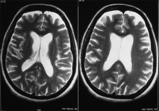 Brain magnetic resonance imaging showing prominent sulcal spaces, and ventricular system dilated with diffuse cerebral atrophy