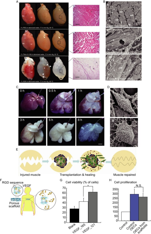Transplantable biomaterials as cell carriers. (A) Perfusion-based decellularization of whole rat hearts and HE staining at different stages; (B) SEM of cadaveric and decellularized left ventricular (LV) and right ventricular (RV) myocardium, myofibers (mf), characteristic weaves (w), coils (c), struts (s), and dense epicardial fibers (epi) were retained (Ott et al., 2008); (C) General appearance of rat liver during decellularization process at different time points; (D) Ultrastructural characteristics of undifferentiated MSCs (i) and hepatocyte-like cells (ii) in biomatrix scaffold using SEM (Ji et al., 2012); (E) Engineered scaffold containing transplanted cells and growth factors is able to guide tissue regeneration in situ (Borselli et al., 2011); (F) Modification of RGD as morphogens on biomaterials providing cell adhesion ligands to maintain cell viability, and to activate and induce cell migration out of scaffold; (G) Viability of endothelial cells (OECs) that migrated out of scaffolds with no VEGF (blank), VEGF121 or VEGF165 in scaffolds; (H) Proliferation of cells that migrated out of scaffolds, normalized cell number (% of initial) (Silva et al., 2008). [Images are reproduced with the permission from Ott et al. (2008), Ji et al. (2012), Borselli et al. (2011), and Silva et al. (2008)]