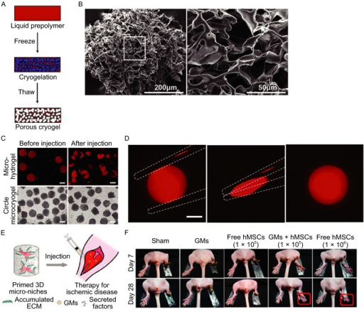 Injectable cryogels for cell transplantation. (A) Gelation process of cryogels; (B) SEM of highly porous PEG cryogels; (C) Microscopic images of microhydrogels (fluorescently stained by Nile red for enhanced visualization) and the microcryogels with different shapes before and after injection (scale bar = 500 μm); (D) Images demonstrating ability of an individual rhodamine-gelatin cryogel to be compressed between forceps (dashed white line) to large strain, followed by release and resumption of its original shape (Koshy et al., 2014); (E) Primed 3D microniches that can be injected into mouse hindlimb; (F) Representative photographs of sham, blank GMs (gelatin microniches), free hMSCs (105), hMSCs (105) within GMs (GMs + hMSCs), and free hMSCs (106) at 7 and 28 days after treatment (Li et al., 2014). (Images are reproduced with the permission from Li et al. (2014) and Koshy et al. (2014))