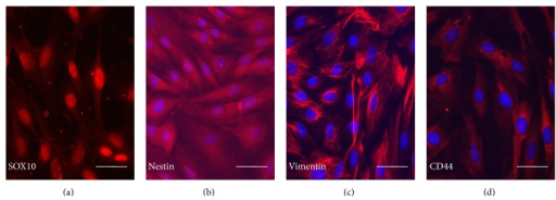 Labeling of neural crest cell markers on REMSCs: those markers were positively stained for SOX10 (a), nestin (b), vimentin (c), and CD44 (d). Nuclei were labeled with Hoechst 33342 (blue) except for SOX10. Bar: 20 μm for all pictures.