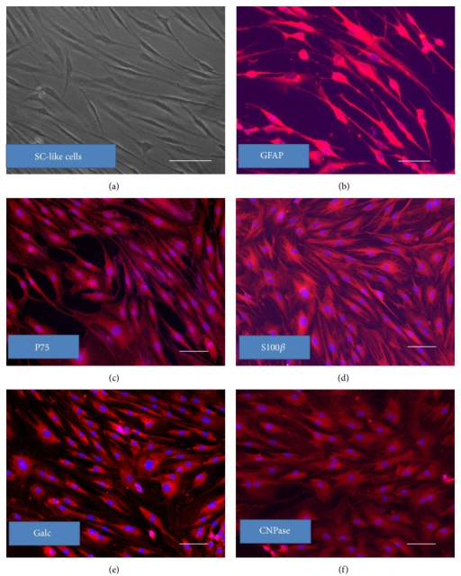 SC-like cells differentiated from REMSCs demonstrated typical Schwann cell morphology and were labeled with related cell surface markers. After 10 days, cells appeared typical bipolar and spindle-like Schwann cell phenotype (a), immunofluorescent staining showed that differentiated cells were stained positively with GFAP (b), P75 (c), S100β (d), Galc (e), and CNPase (f). Nuclei were labeled with Hoechst 33342 (blue). Bar: 50 μm for all pictures.
