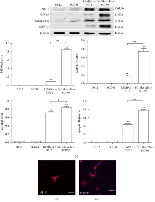 Western blot and immunofluorescent labeling indicated that SC-like cells promoted the differentiation of PC12 cells into mature neuron-like cells. (a) Neural cell markers including NF-H, GAP-43, PSD-95, and Synapsin II were detected in PC12 cells after being cultured for 5 days for all four groups, which were PC12 cells treated with DF12 medium, PC12 cells treated with SCDM, PC12 cells treated with DF12 medium and REMSCs, and PC12 cells treated with SC-like cells and SCDM. β-Actin was used as a loading control. The experiments were replicated three times and a representative blotting was shown. Each bar showed the ratio of marker protein to β-actin. The data were presented as the mean ± SEM of three independent experiments. **P < 0.01 represent significant differences compared with group A; ##P < 0.01 represent significant differences compared with group C. Immunofluorescent staining showed that differentiated PC12 cells in group D expressed NF-H (b) and PSD-95 (c). Bar: 50 μm for all pictures.