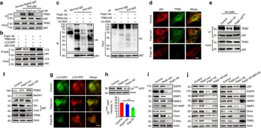 An α-helical peptide of p62 interrupts the TRB3/p62 interaction and promotes autophagy and UPS degradation.(a) HepG2 cells were treated with Pep2–A2 or Pep2-con (5 μM) for 12 h, and extracts were IP with anti-p62 Ab or normal rabbit IgG and blotted with anti-TRB3 Ab. (b,c) HEK 293T cells were transfected with the indicated plasmids. The effect of Pep2–A2 on the LC3/p62 and Ub/p62 binding was evaluated with Co-IP assay. (d) HepG2 cells were treated with Pep2–A2 or Pep2-con for 24 h, and the colocalization of the P62/TRB3 was examined by immunostaining. Scale bar, 10 μm. (e) HepG2 cells were treated with Pep2-con, Pep2–A2 or Pep2–A2mut (5 μM) for 12 h and cell extracts were IP with anti-p62 Ab and blotted with anti-TRB3 Ab. (f) HepG2 cells were treated with Pep2–A2 or Pep2-con for 24 h and the autophagy-associated proteins were detected by immunoblotting. (g) HepG2 cells infected with mRFP-GFP-LC3 plasmid were treated with Pep2–A2 or Pep2-con for 24 h, and the images were captured with confocal microscopy. Scale bar, 10 μm. See also Supplementary Movies 4–6 for details. (h) HepG2 cells transfected with UbG76V-GFP plasmid were treated with Pep2–A2 or Pep2-con for 24 h. Cell lysates were collected for immunoblotting analysis. (i) HepG2 cells were treated with Pep2–A2 or Pep2-con for 24 h. The expressions of indicated proteins were detected by immunoblotting. (j) HepG2 cells were treated with Pep2-con, Pep2–A2, Pep2–A2 plus bafilomycin (left) or Pep2–A2 plus MG132 (right) for 12 h. The expression of indicated proteins was detected by immunoblotting. For all panels, n=3 independent experiments. Data indicate mean±s.e.m. Statistical significance was determined with one-way ANOVA; **P<0.01.