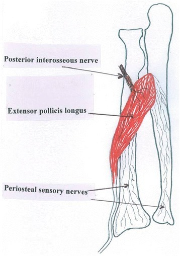 A schematic of the forearm showing the sensory nerve network from the posterior interosseous nerve flowing via the extensor pollicis longus muscle