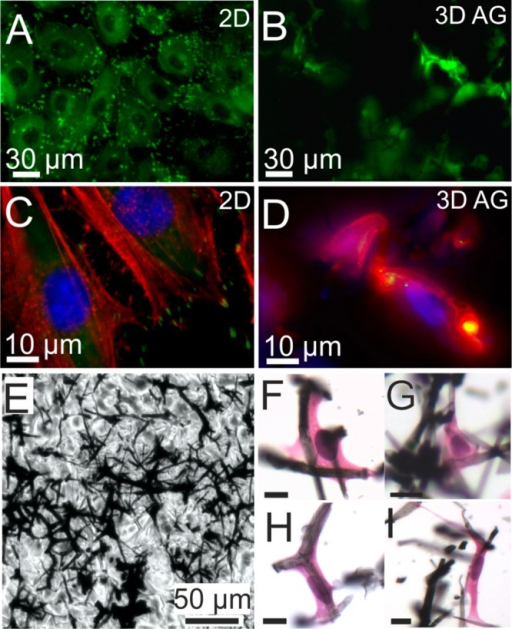 (A)YFP fluorescence (green) images of REF YFP-paxillin cells on a flatsubstrate, which have grown to a confluent layer. Bright fluorescentspots indicate focal adhesions of the cells. Intracellular homogeneousfluorescence originates in part from cytosolic paxillin. Dark circularregions indicate the area of cell nuclei. B) Optical section imageapproximately 100 μm from the surface. YFP-paxillin fluorescenceappears to be associated with filament-like structures indicatingcell growth along fibers of the scaffold. (C) Higher-magnificationfluorescence image of REF YFP-paxillin cells on 2d substrate (focaladhesion sites; green) that were stained with DAPI (nuclei; blue)and RFP (stress fibers; red). (D) Optical section image approximately50 μm from the surface, showing a mesh of actin (red) ratherthan stress fibers and smaller clusters of YFP-paxillin compared tothe 2D substrate, which appear yellow due to overlap with red actinfluorescence. E) Bright field image of a 9 μm paraffin thinsection from a position about 0.4 mm below the AG surface. Embeddedin wax cells cannot be distinguished from the paraffin background.(F–I) Haematoxylin and eosin staining makes REF52 YFP Pax cellsvisible by coloring the nuclei blue (hematoxylin) and the cytosolpink (eosin). Due to vigorous dewaxing and staining treatment, theoriginal AG section is highly fragmented. Nevertheless, higher-magnificationreveals cells that are well-interfaced with AG filaments and illustratemorphologies typical for fibroblasts. Scale bars: 10 μm.