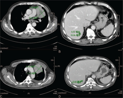 Baseline and first follow-up computed tomography (CT) images of a 60-year-old man with metastatic lung adenocarcinoma treated with EGFR-TKIs. Axial CT images at baseline (A and B) demonstrate the target left lung and liver metastases (green measurement lines), measuring 71.06 mm and 10.06 mm in long axis, respectively. Axial contrast-enhanced CT at first follow-up after treatment initiation (C and D) demonstrated ∼9% decrease in the sum of the longest diameter of the targets (green measurement lines), measuring 64.20 mm and 10.11 mm, respectively. CT = computed tomography, EGFR = epidermal growth factor receptor, TKI = tyrosine kinase inhibitors.