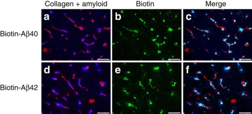 Dutch/Iowa CAA mutant cerebral microvascular amyloid in Tg-SwDI mice promotes the accumulation of administered biotin-labelled wild-type Aβ peptides.Biotin-labelled wild-type Aβ40 (a–c) or biotin-labelled wild-type Aβ42 (d–f) were injected into the hippocampal region of 12-month-old Tg-SwDI mice. Brain sections were prepared and fibrillar amyloid was detected using Amylo-Glo (blue) and immunolabelled with an antibody to collagen IV for detection of cerebral blood vessels (red). Biotin-labelled wild-type Aβ40 or Aβ42 peptides were detected using streptavidin-Alexa Fluor 488 (green). Scale bars, 50 μm.