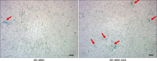 Representative photographs showing senescence-associated β-galactosidase (blue) staining of MSCs before and after exposure to AZA. The scale bar represents 100 µm.