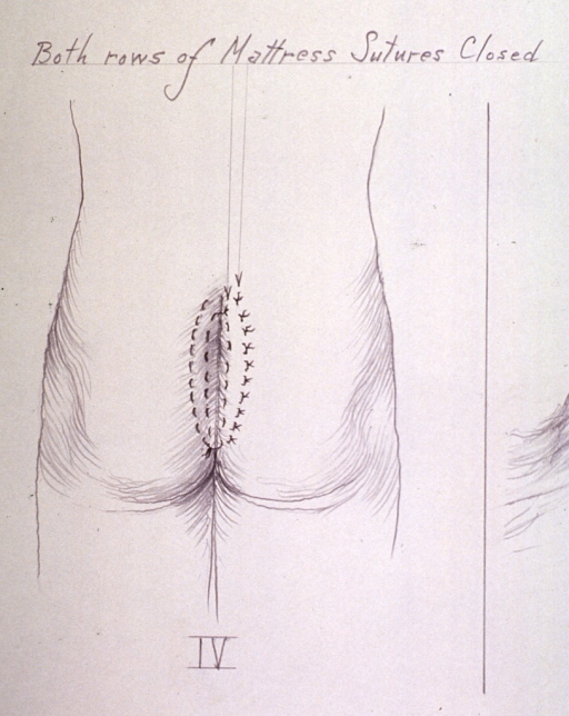 <p>Illustration showing two rows of mattress sutures (interrupted and continuous) closed after procedure to remove a cyst.</p>