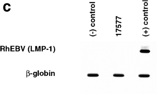 PCR amplification and hybridization for RRV in BM from an animal (17577) with LPD. (a) Semiquantitative PCR of BM-derived DNA from the SIV-infected animal with LPD for RRV MIP. Lane 1, BM-derived DNA; lane 2, 100 pg of DNA from uninfected cells; lane 3, 100 pg of DNA from uninfected cells plus 100 fg of vDNA; lane 4, 100 pg of DNA from uninfected cells plus 1 pg of vDNA; lane 5, 100 pg of DNA from uninfected cells plus 10 pg of vDNA; lane 6, 100 pg of DNA from uninfected cells plus 100 pg of vDNA. (b) PCR and Southern blot analysis of DNA amplified from BM for RRV MIP or rhesus β-globin gene. The source for each BM sample is indicated above each lane. The negative (−) control is DNA isolated from uninfected rhesus fibroblasts. (c) Southern blot analysis of DNA PCR amplified with oligonucleotide primers specific for the rhesus (Rh)EBV LMP-1 gene or rhesus β-globin gene. The source for each sample is indicated above each lane. The negative (−) control is DNA isolated from uninfected rhesus fibroblasts, and the positive (+) control is DNA from RhEBV-infected cells.