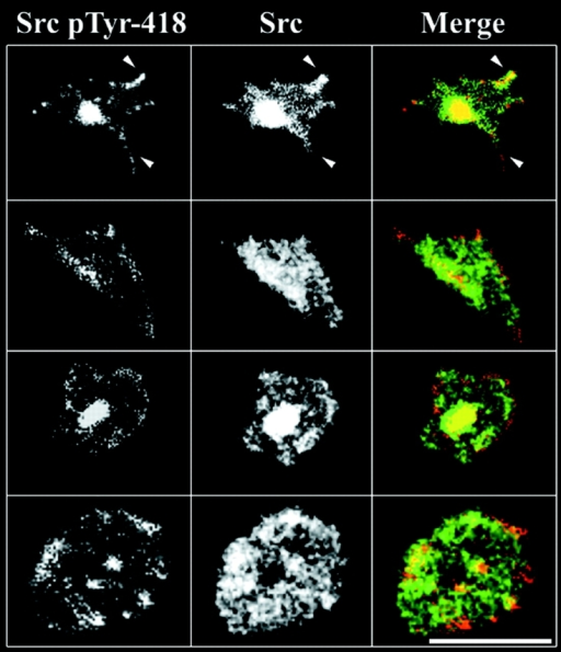 Distribution of activated Src and total Src in fibrinogen-adherent platelets. Cells were plated on fibrinogen-coated coverslips for 45 min and prepared for confocal microscopy as described in Materials and methods. Images represent four platelets in various stages of spreading. In the merged images, activated Src (Src pTyr-418) is red and total Src is green. Arrowheads point to some of the filopodia that stained heavily for activated Src. The results are from a single experiment representative of three so performed. Bar, 10 μm.