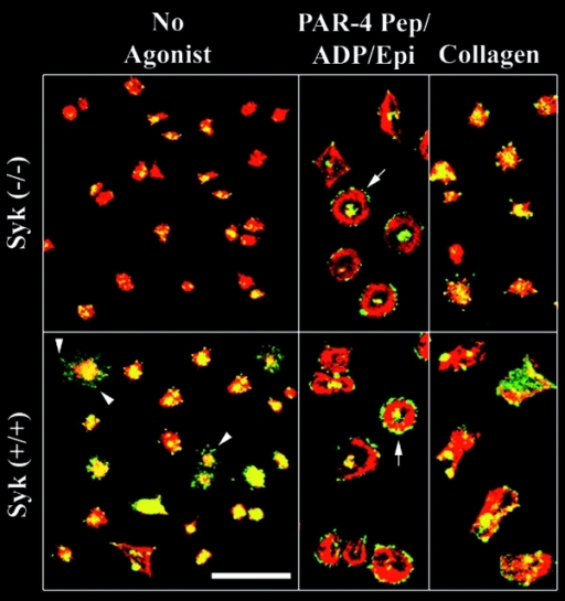 Platelet spreading on fibrinogen is defective in syk−/− murine platelets. Platelets were obtained from syk−/− and wild-type mice and plated on fibrinogen for 45 min with no agonist; with a combination of PAR-4 receptor–activating peptide (1 mM), ADP (50 μM), and epinephrine (50 μM); or with collagen (10 μg/ml). Cells were then fixed, permeabilized and stained for F-actin (red) and phosphotyrosine (green), and analyzed by confocal microscopy. Arrowheads point to filopodia and arrows to the peripheral rims of some of the spreading platelets. Results are representative of three experiments. Bar, 10 μm.