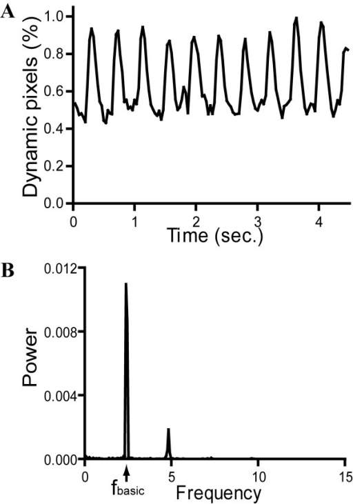 A typical example of the signal of dynamic pixels (A) and its corresponding power spectrum (B) obtained from the caudal circulation of a 52-hpf control embryo. fbasic: first frequency component