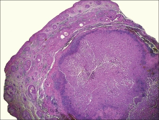 Nodular tumor located in dermis. Note that the heavy infiltration by lymphocytes is mainly present at the peripheral portions of the tumor (H&E, ×20)