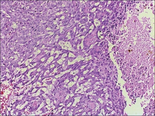 Focal tumor cell necrosis is seen through out the tumor (H&E, ×200)