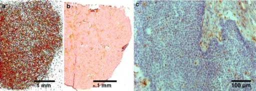 Representative digital autographs and immunohistological stainings of BxPC-3 tumor cryosections. a68Ga-chloride autoradiography, b macrophage staining with CD68 antibody, and c magnification (×120) of the same section show rather uniform distribution of the radioactivity and macrophages, respectively. The CD68 positive staining is strong also in the stroma.