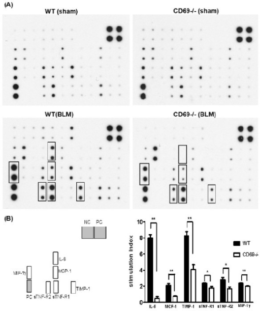 Effect of bleomycin treatment on cytokine expression in wild-type and CD69-deficient mice. (A) Cytokine array analyses of BALF 7 d after the instillation of BLM or PBS (sham treatment) in WT or CD69-/- mice. Cytokines with increased expression levels are boxed. (B) Expression levels of these cytokines in WT (black bars) and CD69-/- (white bars) mice. Each expression level was normalized by that of the positive control. The stimulation index is the ratio of the expression level of a cytokine in BLM-treated mice to that in sham-treated mice. Results are expressed as the mean (SEM) (n = 4 mice per group). *P < 0.05, **P < 0.01.