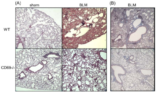 Effect of bleomycin on the lung architecture in wild-type and CD69-deficient mice. Comparison of the lung architecture in WT and CD69-/- mice after instillation of BLM or PBS (sham treatment), as shown by hematoxylin-eosin (A) and Masson's trichrome (B) staining of representative tissue sections.