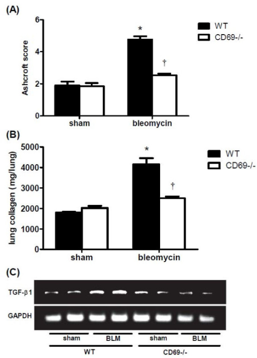 Effect of bleomycin on lung fibrotic and biochemical changes in wild-type and CD69-deficient mice. (A) Ashcroft scores, which are a semi-quantitative measure of lung fibrotic changes, were determined 14 d after the instillation of BLM or PBS (sham treatment). Please see the Methods section for an explanation of the scoring criteria. Results are expressed as the mean (SEM) (n = 4 mice per group). *P < 0.01 vs. sham-treated mice. †P < 0.01 vs. WT mice. (B) The lung collagen content was measured 14 d after the instillation of BLM or PBS (sham treatment). Results are expressed as mean (SEM) (n = 6-8 BLM-treated mice, n = 3 sham-treated mice). *P < 0.01 vs. sham-treated mice. †P < 0.01 vs. WT mice. (C) The mRNA expression level of TGF-β1 in the lung was measured 7 d after the instillation of BLM or PBS in WT or CD69KO mice.