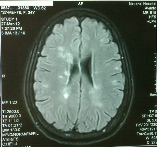 Close up image of T2WI MRI Brain image of multiple periventricular hyperintense lesions.