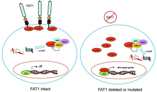 Figure 1. Model of FAT1 function. When FAT1 is present, β-catenin is held at the cell membrane. When FAT1 is inactivated by mutation or deleted in cancers, an excess of β-catenin is present in the cytoplasm. Some β-catenin is then able to enter the nucleus and cooperate with TCF transcription factors to activate gene expression of Wnt target genes. The APC/GSK-3/Axin complex can potentially target β-catenin for degradation. However, excess β-catenin caused by FAT1 inactivation may not all be degraded by the APC/GSK-3/Axin complex or the complex may not be as active in non-colorectal cells.
