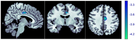 Region of different gray matter volume between individuals with and without childhood trauma.Decreased gray matter volume was detected in the right middle cingulate gyrus (Brodman area 24, x = 6, y = −6, z = 39, cluster size  = 303, z score  = 4.25, puncorrected<0.001, pFDR corrected  = 0.047,) in subjects with childhood trauma. The right middle cingulate gyrus is shown in blue.