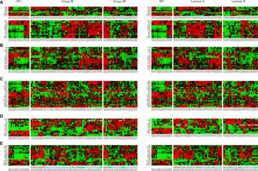 Heatmaps for the subnetworks of MYC and STAT3 in different subtypes of the ER(+) IDCs. Non-tumor components (NT) serve as the controls. Left panel shows the heatmaps for 90 A cohort, which were generated from 61 group IE, and 29 group IIE breast cancer subtypes. Right panel shows the heatmaps for 72 A cohort which were generated from 42 luminal A and 32 luminal B breast cancer subtypes. The hierarchically clustered gene expression patterns were based on the similar expression levels among genes in the subnetworks of four altered biological events—cell proliferation (upper panel of A), sustained angiogenesis (lower panel of A), Warburg effect (B) and ES-like phenotype (C). A FOXC1 subnetwork (D) contains a gene list to be a part of the FOXC1 subnetwork in the ER(−) IDCs.9 4E stands for heatmaps of 2 cohorts (90 A, 72 A) for the prognostic factors (17 probes) identified in the STAT3 subnetworks (4A–D and Fig. 7B) of 90 A cohort. We located 3 subcohorts based on their similarity in gene expression patterns for a prognosis signature (17 probes) indicated by feature color bars underneath of the heatmap for Figure 4E. Light red color bar stands for subcohort 1 (N = 14). Light green color bar stands for subcohort 3 (N = 17). Light blue color bar stands for subcohort 2 (N = 59).