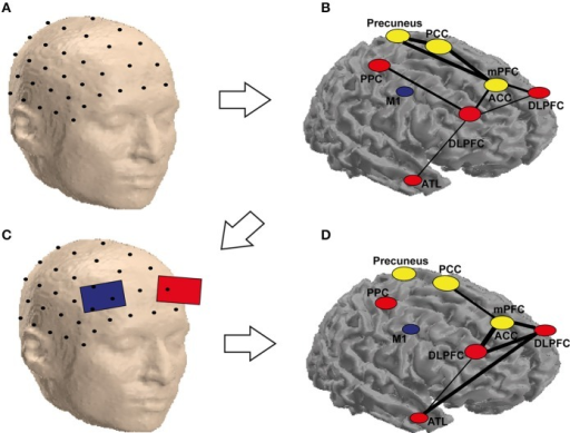 Schematic representation of the possible combination of tCS and functional (EEG) brain connectivity to enhance creativity. An array of scalp electrodes, a subset of which is depicted in (A), is recorded. In (B) is possible to identify ROIs which are highly connected (yellow) and the ones that are flexible hubs (red) or less connected areas (blue) during a solution vs. non-solution RAT task. This helps identifying the target electrodes to stimulate as in (C). Stimulating these electrodes may not only eliminate the differences for the corresponding nodes, but also reduce them for areas in the same network, which are not stimulated but functionally connected to the targeted ones as depicted in (D). It is worth noting that the labels and the networks drawn in the figure are only for demonstration, as they are not precisely equivalent to their anatomical locations (they are only approximate locations on a surface, the areas in yellow are located in the medial area of the brain, which cannot be seen in a cortical mesh). The areas are abbreviated as follows: PCC, posterior cingulate cortex; PPC, posterior parietal cortex; M1, primary motor cortex; mPFC, medial prefrontal cortex; ACC, anterior cingulate cortex; DLPFC, dorsolateral prefrontal cortex; ATL, anterior temporal lobe.