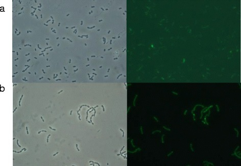 Optical microscopy images (left) and fluorescence microscopy images (right) ofL. lactisNZ9000 overproducing rVP1GFP protein at 30°C 3h post-induction under a) hemin-stimulated respiration and b) anaerobic conditions. Fluorescent protein aggregates are observed as highly fluorescent dots in the cell cytoplasm.