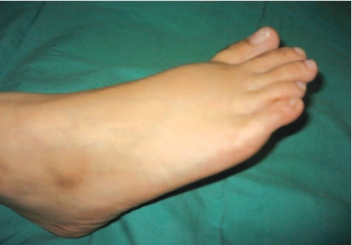 : Swelling over dorsum of right foot.