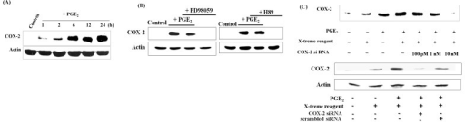 COX-2 siRNA demolishes PGE2- induced expression of COX-2. (A) Cells were exposed to different doses of PGE2 for 12 h and to 1 μM PGE2 for the indicated times. PGE2 induced COX-2 expression in a dose- and time- dependent manner. (B) PGE2 induced COX-2 expression via the MEK and PKA pathways. Cells were pretreated with 10 μM PD98059 or 1 μM H89 for 2 h, and then exposed to PGE2, which failed to induce COX-2 expression. (C) Cells were stably transfected with different concentrations of COX-2 siRNA and then exposed to PGE2. Transfection with COX-2 siRNA prevented PGE2-induced expression of COX-2 at a dose of 10 nM. Scrambled siRNA displayed similar effects as the control upon PGE2 treatment.