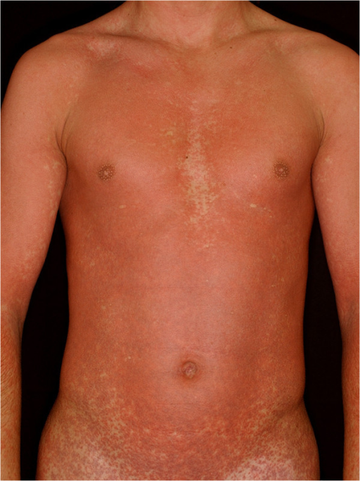 Amoxicillin rash in a patient with infectious mononucleosis (patient 4). The cutaneous eruptions developed a few days after the initiation of the antibiotic therapy. In severe cases the progressive maculopapular exanthems turn into erythroderma.