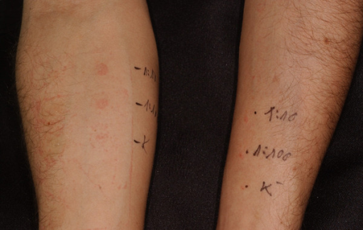 Positive cutaneous response (Penicillin allergenic determinants (DAP) ® test). The in vivo cutaneous investigation was continued with intradermal testing, if the prick tests resulted in negative response at different dilutions. Skin tests were performed using penicillin's main antigens, major determinants and (PPL) and minor determinant mix (MDM). Cutaneous tests were started with major determinants, the negative control was saline solution. In this case we recognized positive skin reaction to MDM at 1:100 and 1:10 dilutions, which verified the development of sensitization (patient 4).
