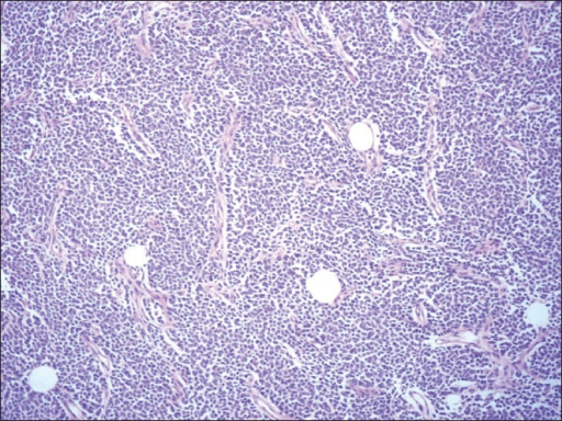 Tumor composed of monotonous sheets of round cells divided by fibro vascular septae