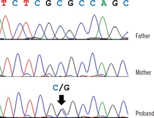 Validation of a novel PAX3 variant by Sanger sequencing. The patient had a nonsynonymous substitution (c.220C>G; p.Arg74Gly, arrow) in PAX3. The patient's father and mother did not have this variant.