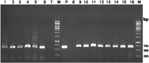 Restriction fragment length polymorphism (RFLP) pattern of the PCR products of the liver flukes after digestion with DraII restriction enzyme. Lanes 1–7, PCR products of F. hepatica; Lanes 9–16, PCR products of F. gigantica. Lane P: 618-bp-long PCR product of F. gigantica; Lane M, 250bp DNA size marker