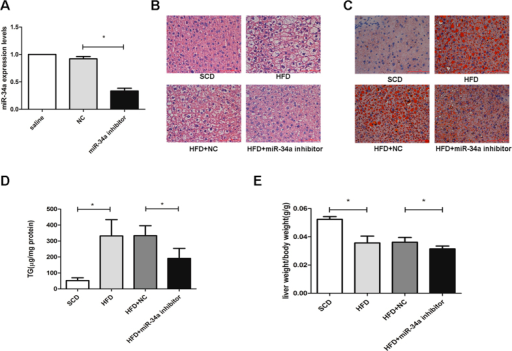 Inhibition of miR-34a attenuated hepatic steatosis and plasma AST levels in HFD-fed mice.(A) The miR-34a inhibitor markedly reduced the miR-34a expression levels in mice. (B) H&E-stained liver sections from mice fed with HFD treated with NC or miR-34a inhibitor (400×). (C) Oil red O staining of liver tissues fed with HFD, HFD treated with NC or miR-34a inhibitor respectively (400×). (D) Influence of miR-34a inhibitor on liver TG levels induced by HFD. (E) Influence of miR-34a inhibitor on liver weight/body weight ratio (liver index) induced by HFD. Representative results from three independent experiments are shown. Data are mean ± standard deviation in A, D and E. *P < 0.05.