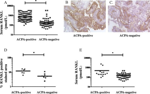 Serum and synovial RANKL is increased in ACPA-positive as compared to ACPA-negative rheumatoid arthritis (RA). Graphs illustrate the results of ELISA measurement of total serum RANKL concentrations in RA (a) and in RF-negative RA (e) grouped by ACPA status. Immunohistochemistry staining shows expression of synovial RANKL in one ACPA-positive (b) and one ACPA-negative RA patient (c) and the graph illustrate the results of image analysis in 15 patients (d). Horizontal lines represent median values, *p <0.05. ACPA anti-citrullinated protein antibodies, ELISA enzyme-linked immunosorbent assay, RANKL receptor activator of nuclear factor kappa B ligand, RF rheumatoid factor