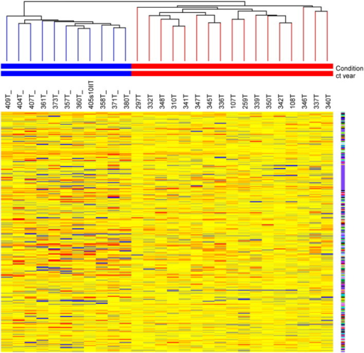 Unsupervised hierarchical clustering of 17 tumours detected in years 1 and 2 (T) and 11 cases detected in years 3, 4 and 5 (T*) using 239 differentially expressed genes.