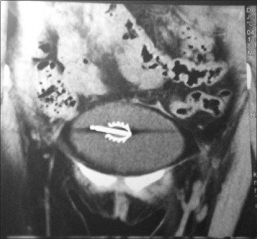 Computer tomography scan of abdomen showing copper T in the urinary bladder