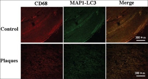 Photomicrographs of the vascular wall cells stained with MAP1-LC3 (green) and CD68 (marker of macrophages, red) in control (lower panels) and plaque shoulder (upper panels), Scale bars=300 μm.