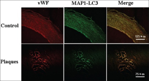 Photomicrographs of the vascular wall cells stained with MAP1-LC3 (green) and Von Willebrand factor (vWF) (marker of vascular endothelia cells, red) in control (upper panels, scale bars=125 μm) and plaque shoulder (lower panels, scale bars=75 μm).