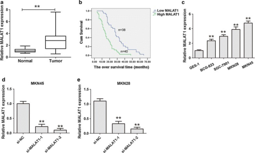 Up-regulation of MALAT1 in tumor tissues samples and cell lines. a The MALAT1 expression in 78 pairs of gastric cancer and corresponding non-cancerous gastric tissues was detected by qRT-PCR assays. **P < 0.05, the internal control was GAPDH. b Kaplan–Meier survival curve and log-rank test was perform to analyze the correlation between MALAT1 expression and the over survival (OS) time. c The MALAT1 expression in gastric cancer cells and an immortalized normal gastric epithelial cell line GES-1 was detected by qRT-PCR assays. **P < 0.05. d, e The MALAT1 expression in MKN45 or MKN28 cells was detected after knockdown of MALAT1 by qRT-PCR assays. Results were represented as the average ± SD based on 3 independent experiments. **P < 0.05
