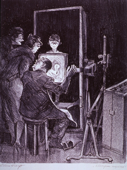 <p>An x-ray technician and two women observe a spoon in a boy's stomach showing up on an x-ray screen.</p>
