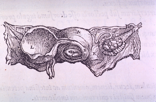 <p>A small illustration of the uterus and one ovary.</p>