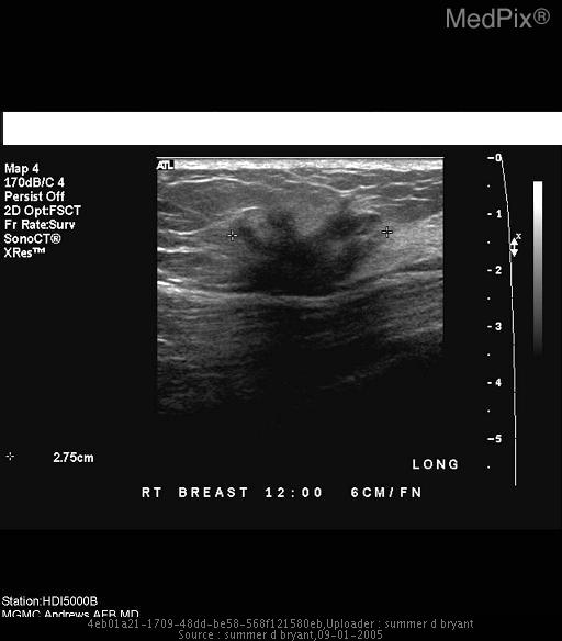 Ultrasound exam of this region demonstrates a 2.8 cm heterogeneously hypoechoic mass with irregular margins and posterior acoustic shadowing
