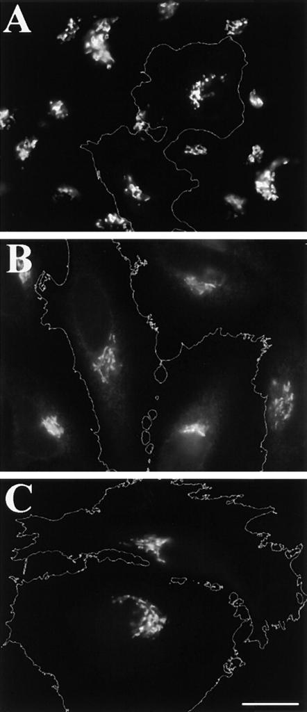 Golgi maintenance and reassembly in anti-GM130– injected cells. Cells injected with rabbit anti-GM130 were incubated for 16 h and stained using mouse antigiantin (A), or mouse anti-p115 (B). Isolated single cells were also injected, incubated for 20 h to allow cell division, and then stained for GPP130 (C). Note that injected cells (outlined) exhibited normal patterns. Bar, 10 μm.